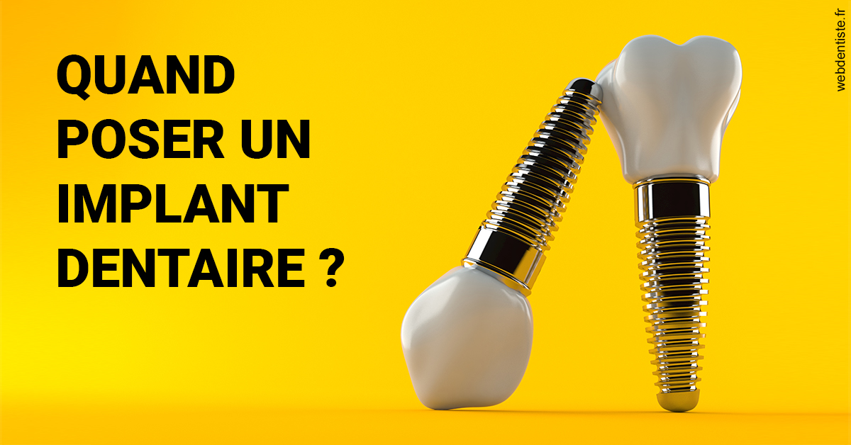 https://dr-vuitton-raphael.chirurgiens-dentistes.fr/Les implants 2